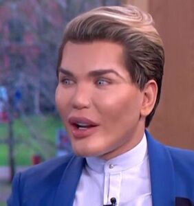 """""""Human Ken Doll"""" says he was drugged, robbed, and had his teeth smashed out"""