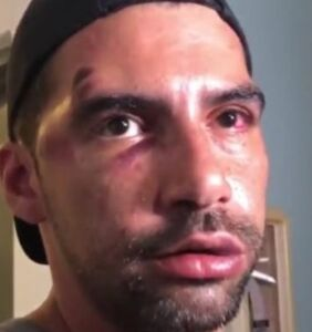 Disturbing video captures gay couple being violently attacked at Miami Beach Pride