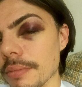 A peck on the cheek triggered a violent hate crime in a chicken restaurant