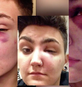 """Several men attacked this trans guy in front of his home for """"acting gay"""""""