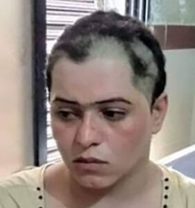 A gang kidnapped, blackmailed, tortured and shaved off this trans woman's hair