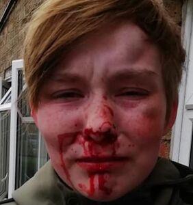 """Lesbian teen beaten bloody by """"friends"""" over a matter of $12"""