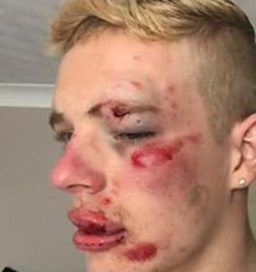 Man viciously attacked near a McDonald's after standing up to homophobic taunts