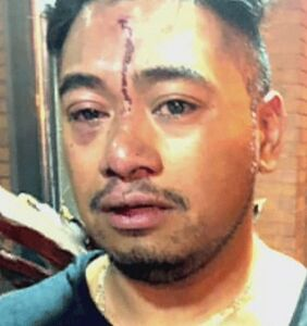 He says the bouncer attacked him for kissing his boyfriend, the bar says he attacked the bouncer