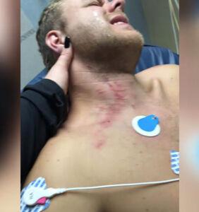 North Carolina gay couple beaten by police impersonators