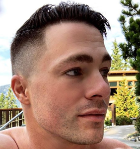 Colton Haynes loses an arm on the set of 'Arrow'