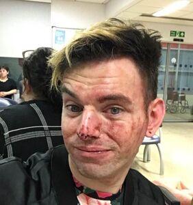Man lands in hospital defending friends under homophobic attack