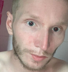 Scottish man, 25, dies of AIDS-related illness after late HIV diagnosis