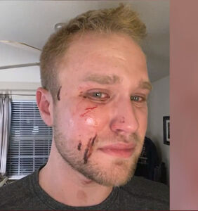"""His attackers yelled """"f*ggot"""" as they beat him. Cops say it's not a hate crime."""
