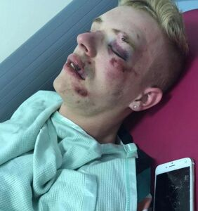 Attacker gets off easy for brutal, disfiguring beating of a gay man