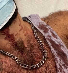 Another brutal attack in Spain leaves a gay man with a smashed jaw