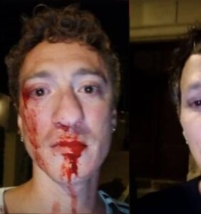 Vacationing gay couple beaten and jeered at by mob in Corsica